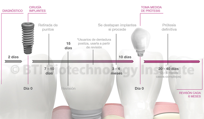 implantes bti madrid